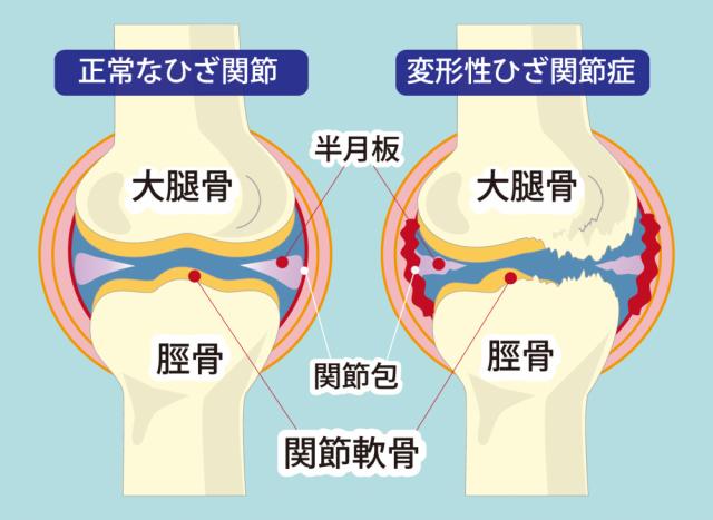 膝関節症のイラスト