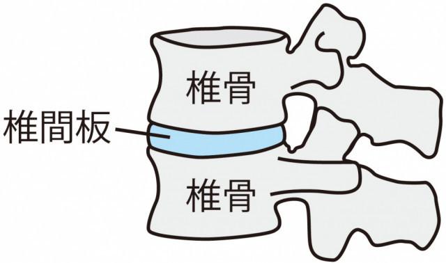 椎間板のイラスト